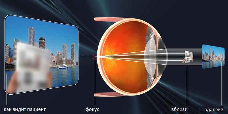 Коррекция зрения лазером при астигматизме